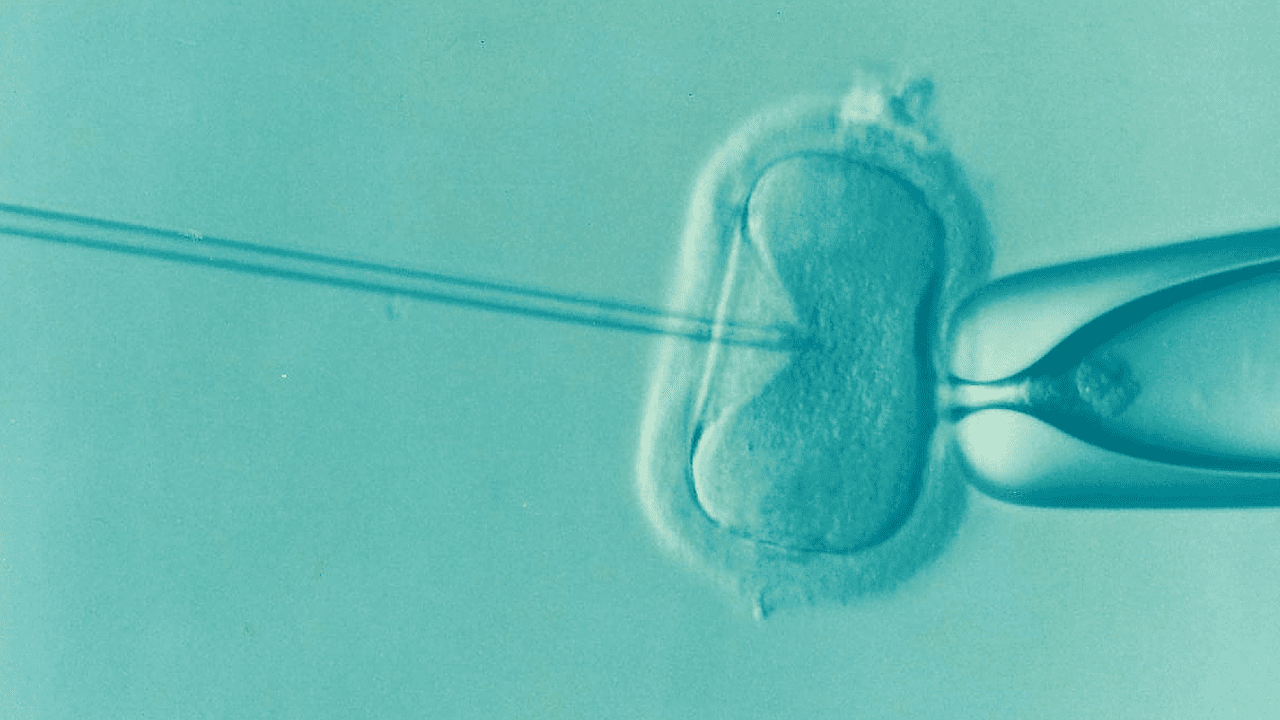 In Vitro Fertilization (IVF)</p> <hr /> <p>
